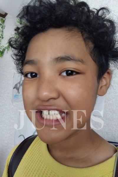 ジョナス オポク(Jonas Opoku)の写真